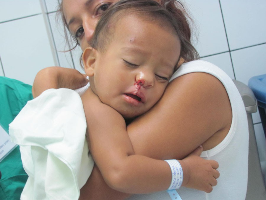A+toddler+suffering+from+a+cleft+palate%2C+is+photographed+after+surgery+administered+on+behalf+of+the+medical+organization%2C+Ecuadent.
